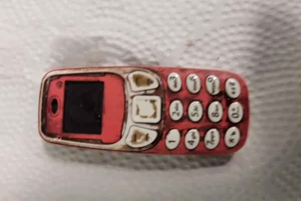 Kosovski Albanac progutao Nokia telefon u komadu