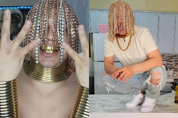 """Mladi """"reper"""" ugradio zlatne kukice za kačenje zlatne """"kose"""" u svoju lobanju"""
