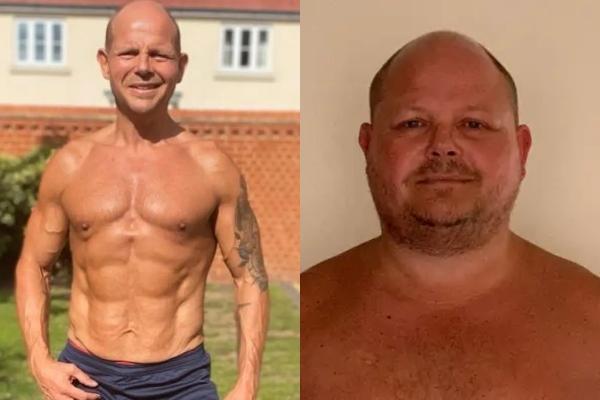 Loša ishrana i prekomerni rad doveli su jednog čoveka do ivice ponora